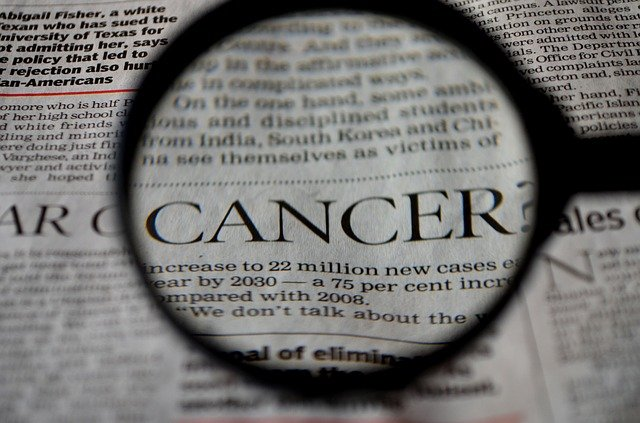 rakovina pod lupou